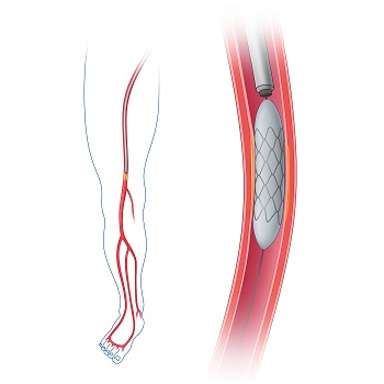 angioplasty in an artery