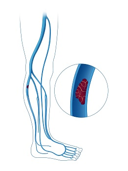 deep vein thrombosis in the lower leg