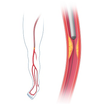 atherosclerosis in an artery with a catheter