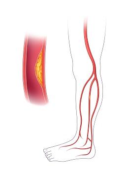plaque in an artery peripheral arterial disease