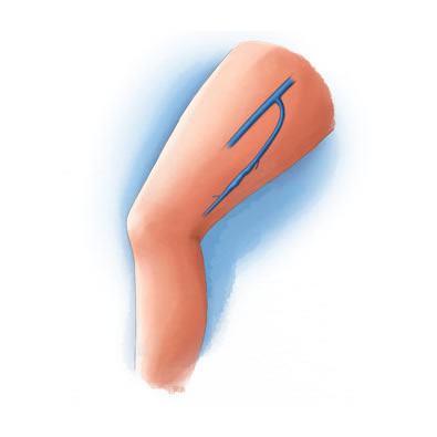 Chronic Venous Insufficiency at IVC Interventional and Vein Center