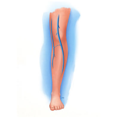 Perforator vein in leg at IVC Interventional and Vein Center