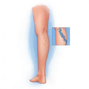 Utah Varicose Veins Treatment at Intermountain Vein Center